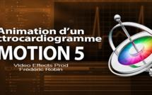 Motion 5 : Animation d'un électrocardiogramme